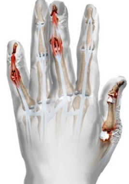 Артрит: Причини, видове и лечение на артрит - Move&Flex